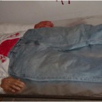 Autopsie d'un cadavre